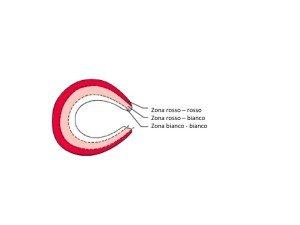 anatomia del ginocchio, sezione schematica delle aree del menisco