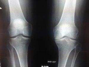 rx ginocchio dx e sx proiezione di Rosemberg, artrosi a sx
