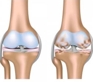 A Sx ginocchio normale, a Dx ginocchio artrosico
