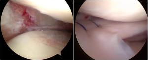 A sx esiti meniscectomia totale, a Dx trapianto meniscale