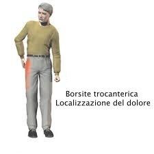 Borsite trocanterica