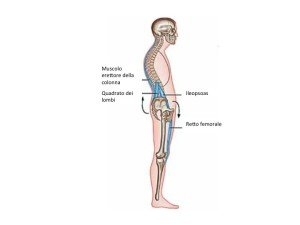 iperlordosi lombare