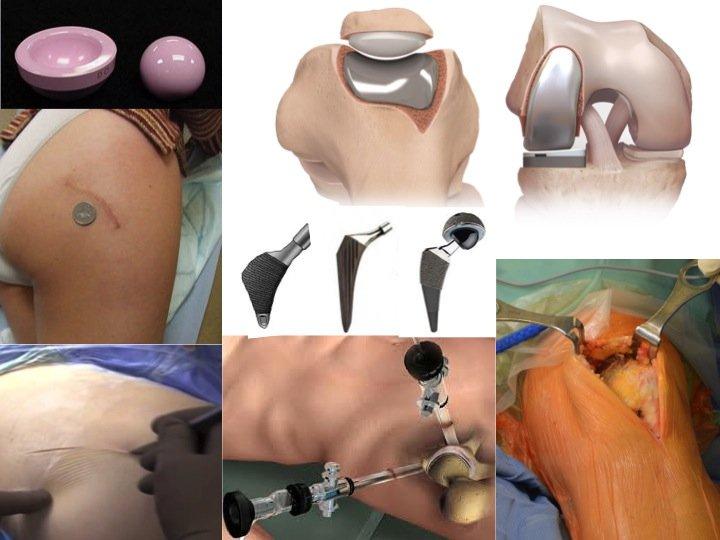 chirurgia mini invasiva