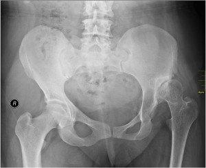 Algodistrofia su displasia dell'anca