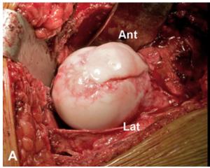 Lussazione chirurgica per il trattamento di una lussazione tipo V