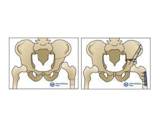 Schema di osteotomia acetabolare e femorale