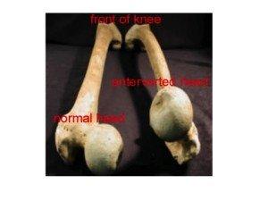 Modello anatomico, femore normale, femore antiverso