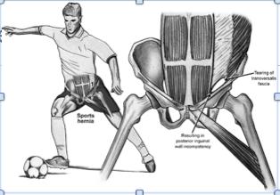 Sports hernia (sport ernia)