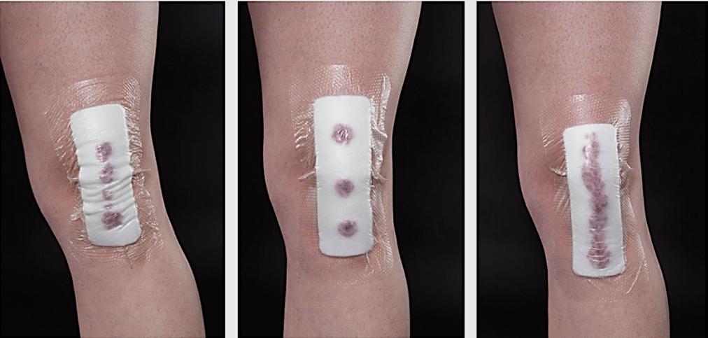 Come curare un ginocchio sbucciato in maniera naturale