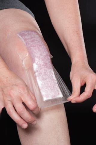 Come prendersi cura della ferita chirurgica dell'anca o del ginocchio dopo un intervento chirurgico di protesi