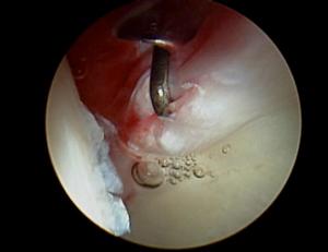 Rottura del labbro acetabolare
