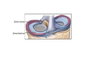 zone del menisco