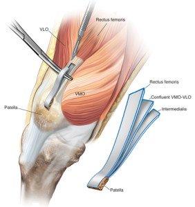 tendine quadricipitale