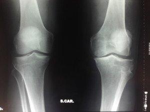 rx ginocchio dx e sx sotto carico