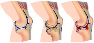 Da sx: Ginocchio normale, artrosi, artrite reumatoide