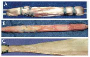 A: Gracile e semitendinoso B: tendine rotuleo C: tendine d'Achille