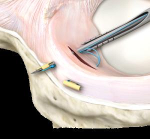 sutura meniscale device dedicato