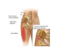 Compressione del nervo femoro cutaneo laterale al legamento inguinale