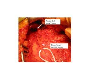 Decompressione chirurgica