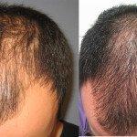 Uso del PRP per la ricrescita dei capelli