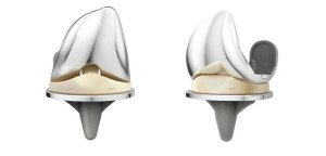 Protesi di ginocchio