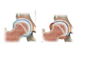 Artrosinovite transitoria dell'anca