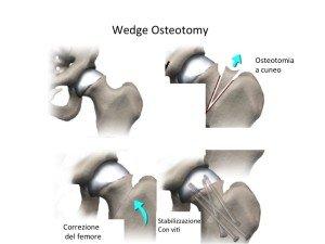 Trattamento con osteotomia