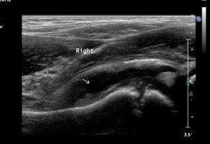 ecografia dell'anca su sinovite transitoria