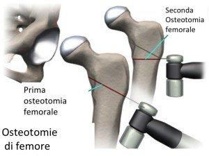 Osteotomie di bacino
