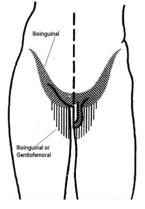 nervo ileoinguinale